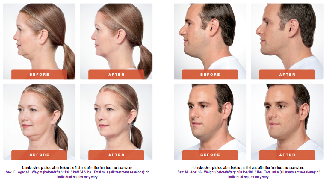 Kybella mansfield cosmetic surgery center