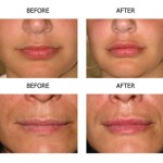 Surgisil PermaLip -- A More Permanent Solution to Lip Augmentation