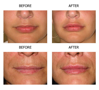 Surgisil PermaLip -- A More Permanent Solution to Lip Augmentation