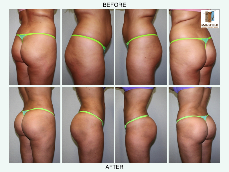 brazilian butt lift mansfield cosmetic surgery center