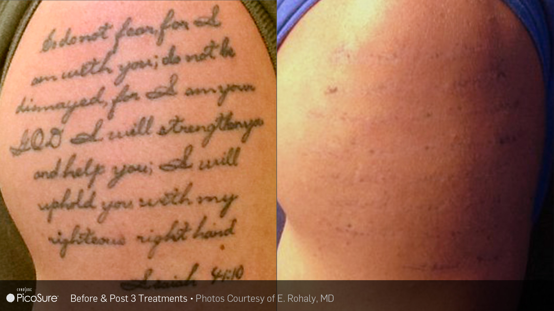 PicoSure Tattoo Removal Before and After