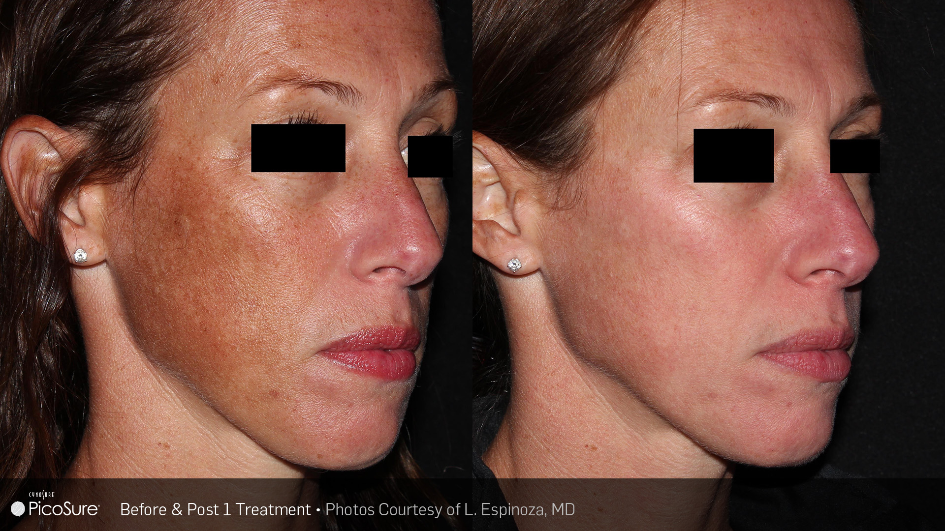picosure hyperpigmentation before and after