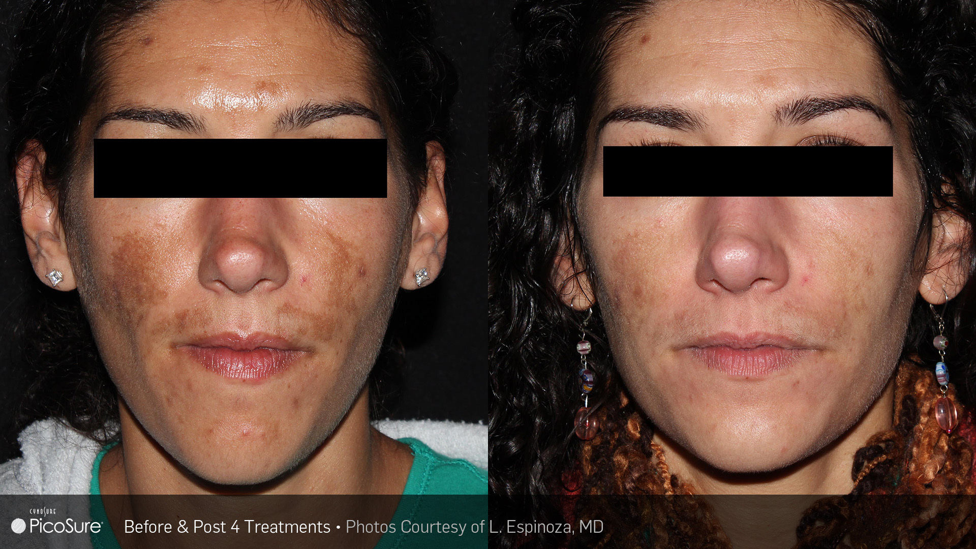 PicoSure Melasma Before and After