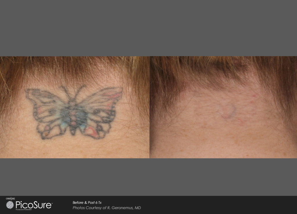PicoSure Before After mansfield cosmetic surgery center