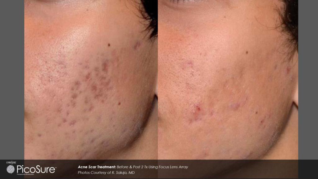 PicoSure Focus Skin Acne Scar treatment mansfield cosmetic surgery center