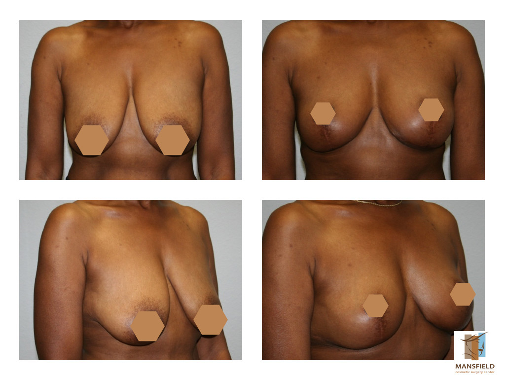 breast lift mastopexy mansfield cosmetic surgery center dr michael thornton