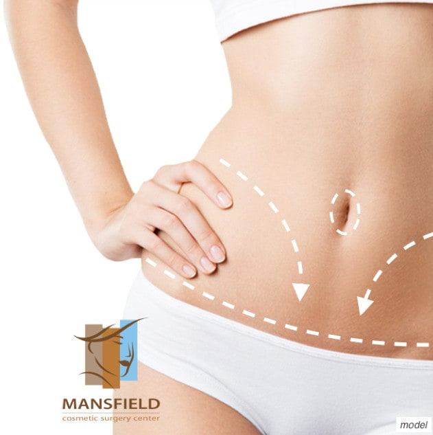 Tummy Tuck Surgery | Mansfield - Arlington - Ft Worth