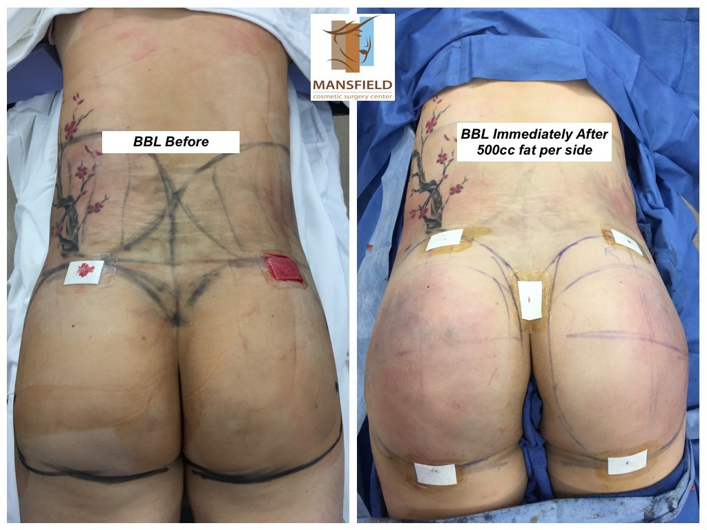 Operation Brazilian Butt Lift Mansfield Cosmetic Surgery Center Dr Michael Thornton