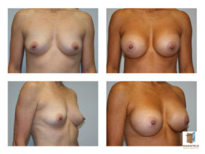 breast augmentation mansfield cosmetic surgery center