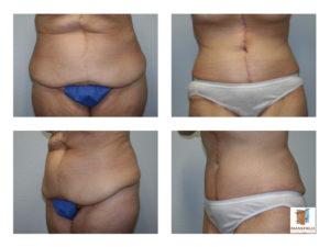 female fleur de lis abdominoplasty mansfield cosmetic surgery center