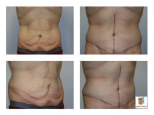 male fleur de lis abdominoplasty mansfield cosmetic surgery center