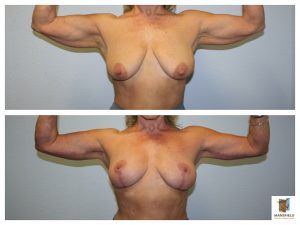 Mastopexy brachioplasty mansfield cosmetic surgery center