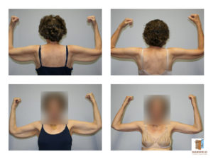 brachioplasty mansfield cosmetic surgery center