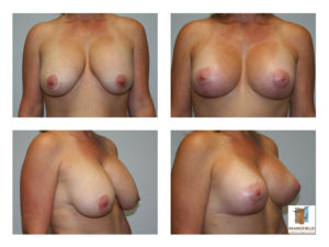revision augmentation mastopexy mansfield cosmetic surgery center