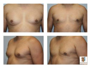 gynecomastia mansfield cosmetic surgery center
