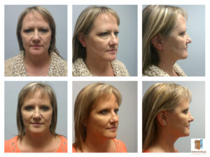facelift mansfield cosmetic surgery center