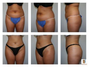 liposuction mansfield cosmetic surgery center