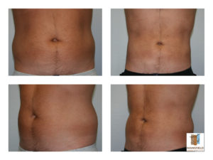 male liposuction mansfield cosmetic surgery center