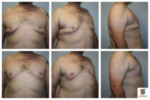 male gynecomastia mastopexy mansfield cosmetic surgery center