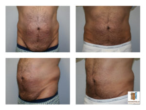 male tummy tuck mansfield cosmetic surgery center