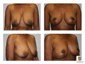 breast lift mastopexy mansfield cosmetic surgery center