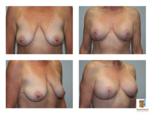 augmentation mastopexy mansfield cosmetic surgery center