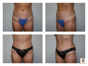 liposuction tummy tuck mansfield cosmetic surgery center