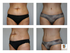 tummy tuck mansfield cosmetic surgery center