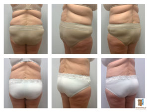 body lift mansfield cosmetic surgery center