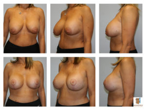 breast revision mansfield cosmetic surgery center