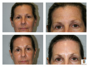 brow lift blepharoplasty mansfield cosmetic surgery center