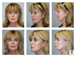 face lift mansfield cosmetic surgery center