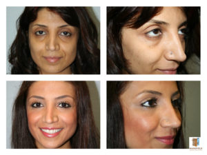 face fat transfer mansfield cosmetic surgery center