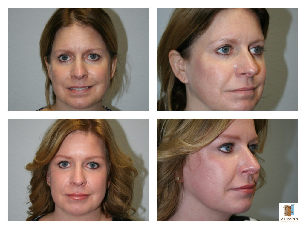 Facial Cosmetic Surgery Before And After Photos-3022