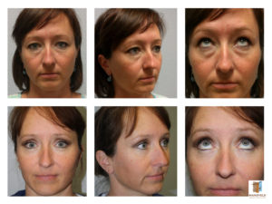 lower blepharoplasty mansfield cosmetic surgery center
