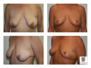 mastopexy mansfield cosmetic surgery center