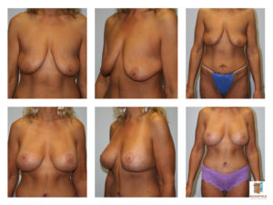 mommy makeover mansfield cosmetic surgery center