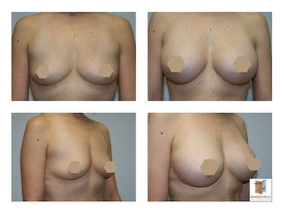 photo gallery breast augmentation dr michael thornton