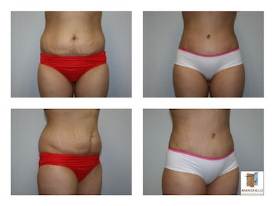 photo gallery tummy tuck dr michael thornton