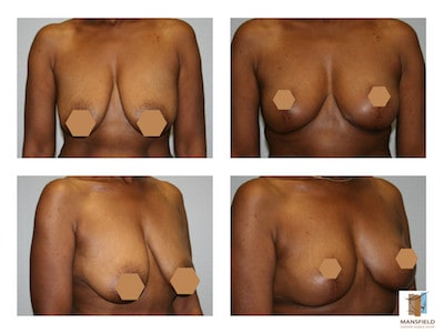photo gallery breast mastopexy dr michael thornton