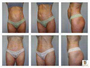 mini tummy tuck mansfield cosmetic surgery center