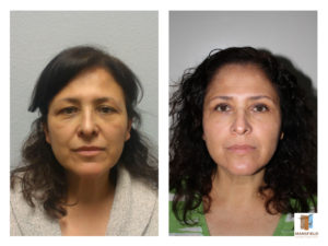 blepharoplasty mansfield cosmetic surgery center