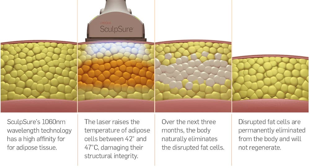 Sculpsure Treatment Mansfield Cosmetic Surgery Center