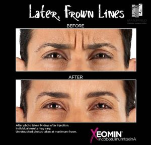 xeomin mansfield cosmetic surgery center