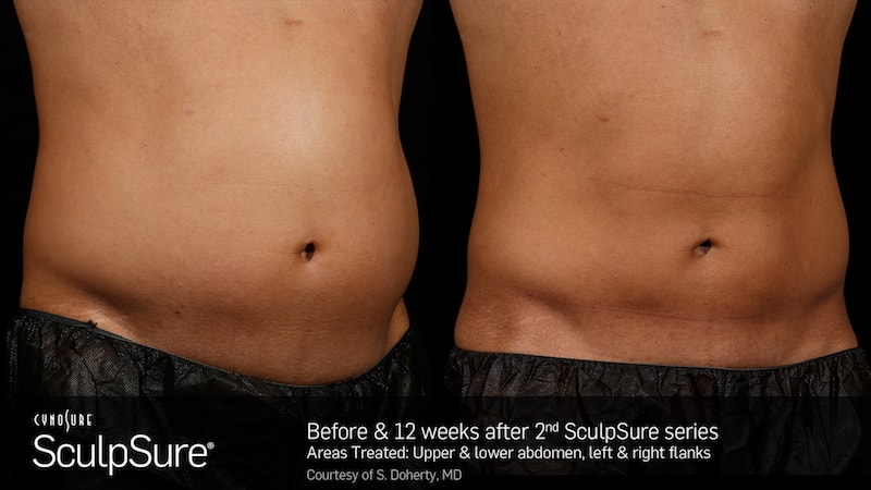 SculpSure before after photo