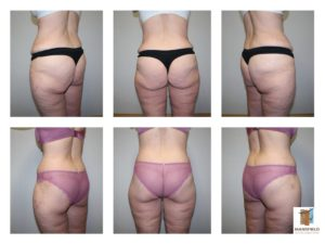 360 body lift mansfield cosmetic surgery center