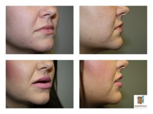 surgisil permalip implant mansfield cosmetic surgery center
