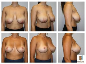 mansfield cosmetic surgery center breast reduction