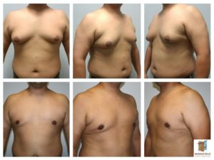 mansfield cosmetic surgery center male breast reduction gynecomastia