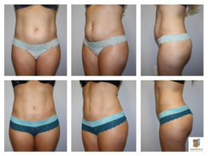 mini tummy tuck mansfield cosmetic surgery center